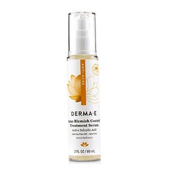 Anti-Acne Acne Blemish Control Treatment Serum 60ml/2oz